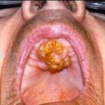 опухоль нёба