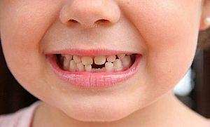 что будет если проглотить зуб