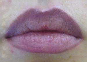 Синеватые губы