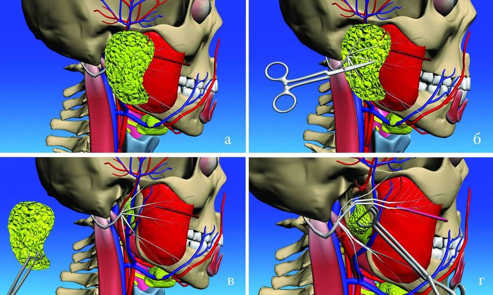 Удаление околоушной слюнной железы
