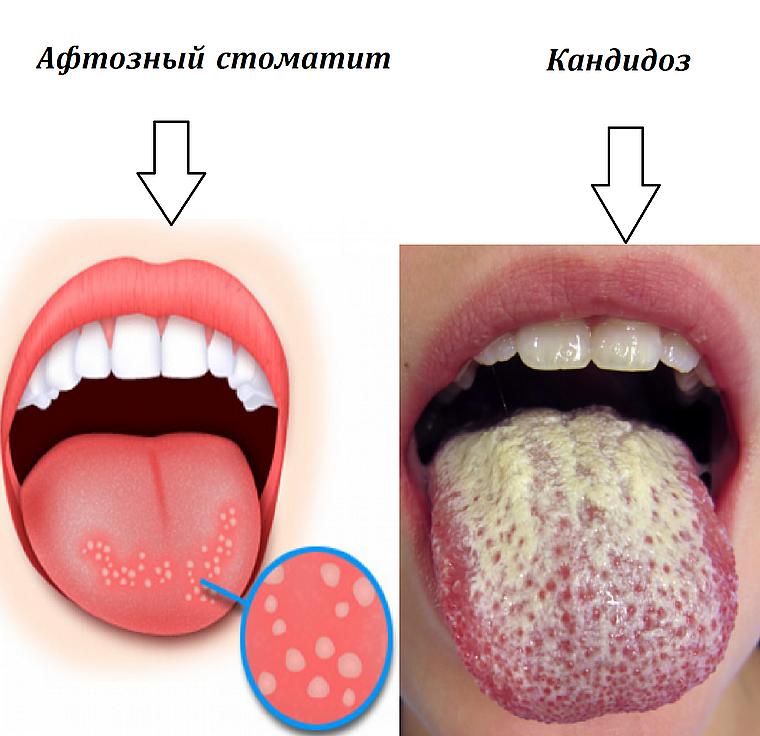 кандидоз языка
