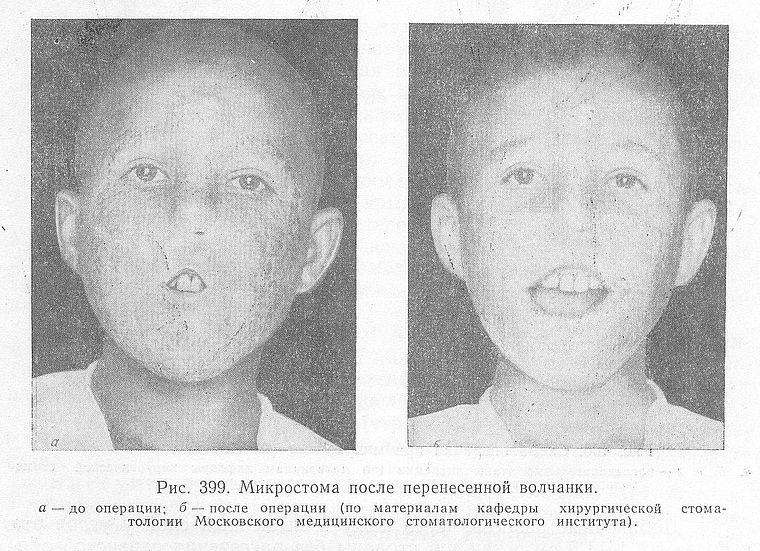 микростомия и операция