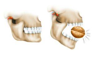 Щелкать орехи зубами - противопоказано