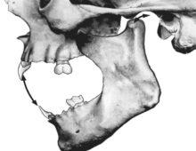 Движение нижней челюсти