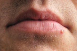 Прыщ на нижней губе