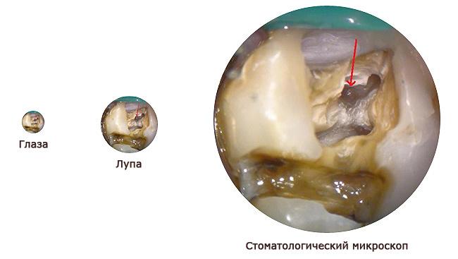Увеличение под микроскопом