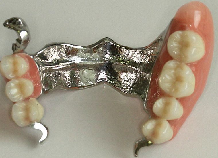 Бюгельный протез верхней челюсти с замковой системой фиксации