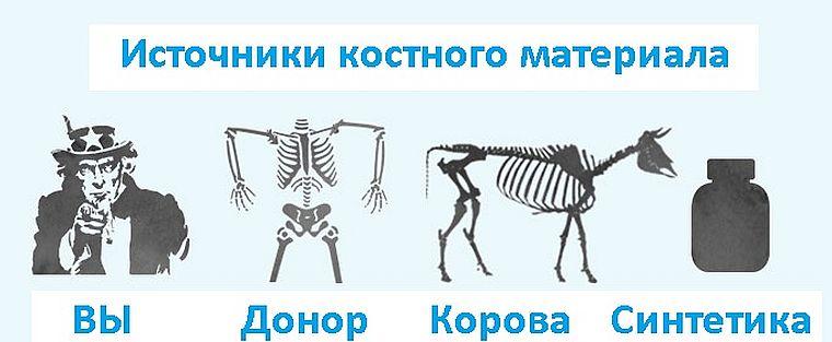 источники костного материала