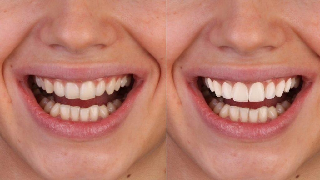 До и после 3D-стоматологии