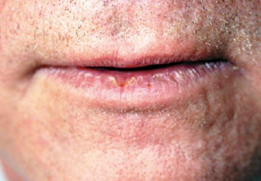 Язык при вич инфекции фото 45