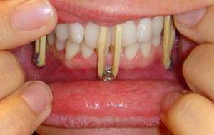 шинирование челюсти