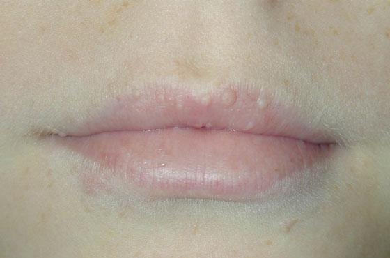 Липомы на губе