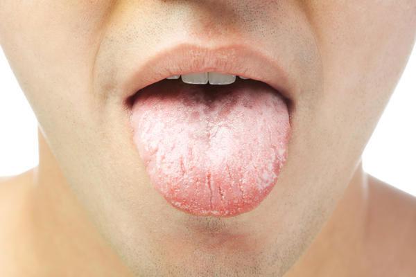 Язык при вич инфекции фото 40
