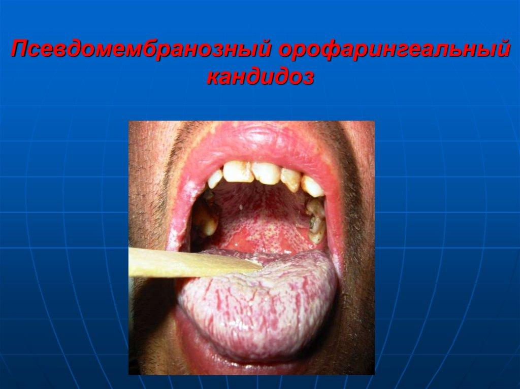Язык при вич инфекции фото 39