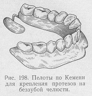 пелоты в стоматологии