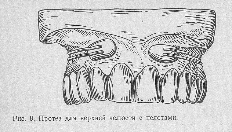 фиксация пелотов в стоматологии