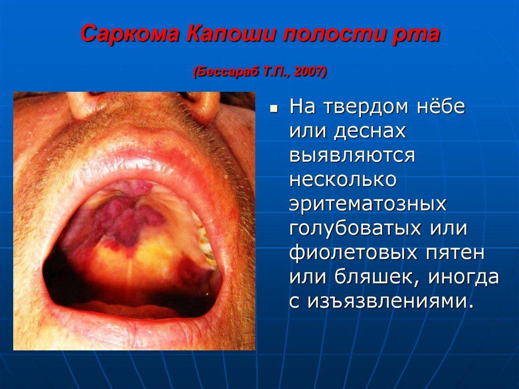 Язык при вич инфекции фото 44