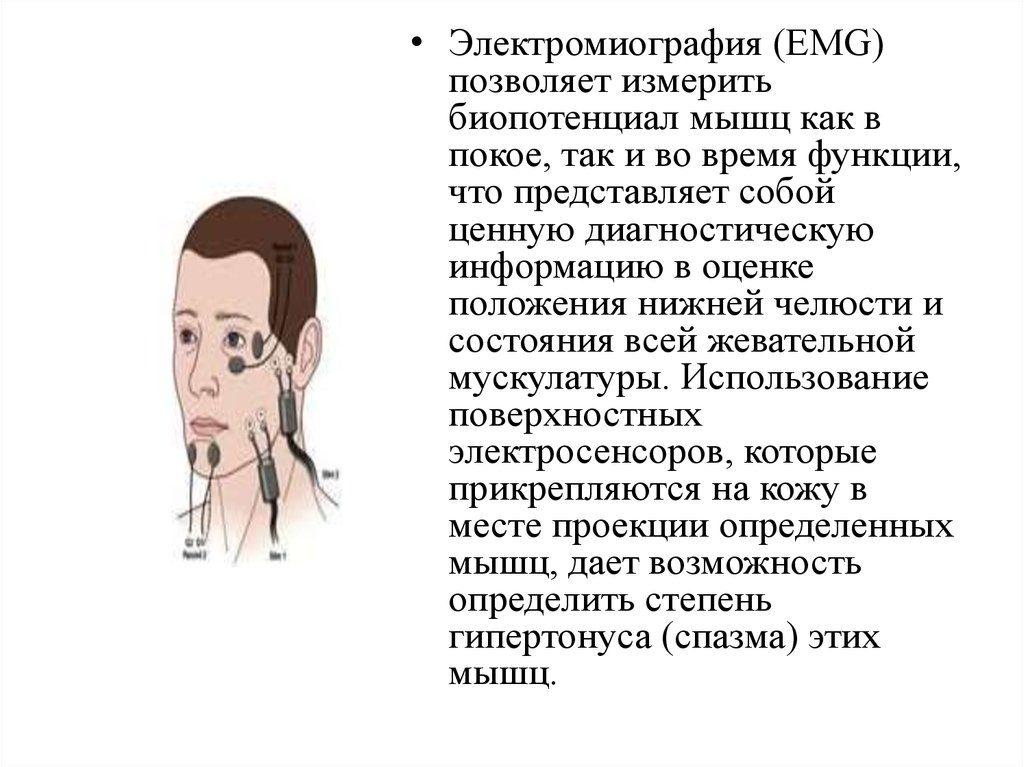 Задачи электромиографии