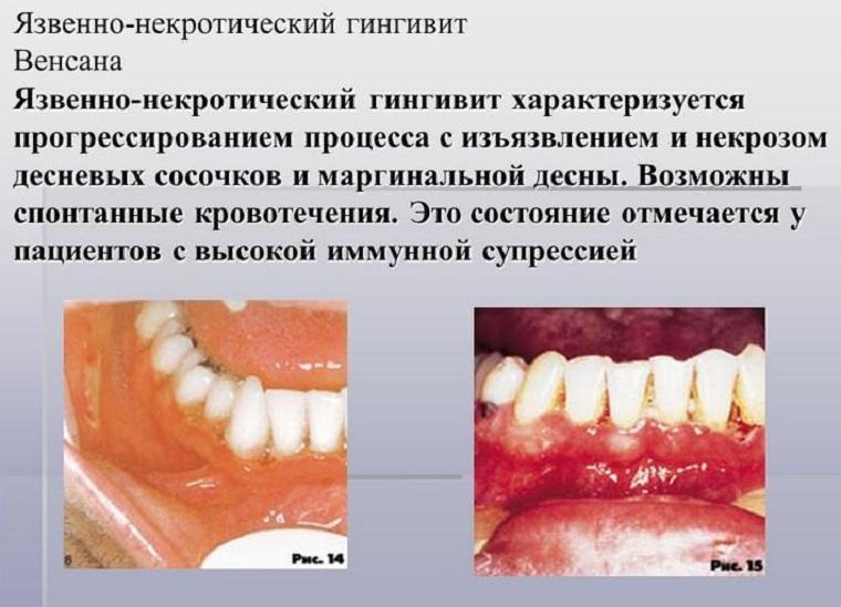 Язык при вич инфекции фото 42