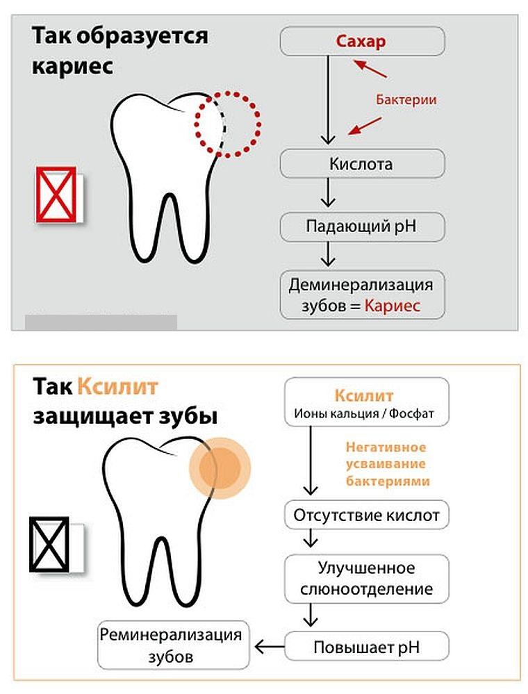 польза ксилита для зубов
