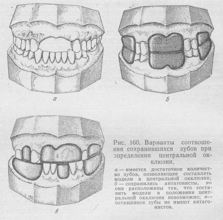 Варианты соотношения сохранившихся зубов при определении центральной окклюзии
