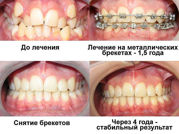 брекеты: до и после