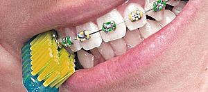 ортодонтическая щетка