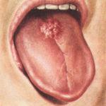 как выглядит ромбовидный глоссит