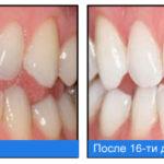 кислородное отбеливание зубов дома