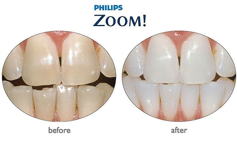 результат отбеливания Philips ZOOM! QuickPro
