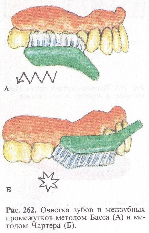 чистка зубов по методу Чартера