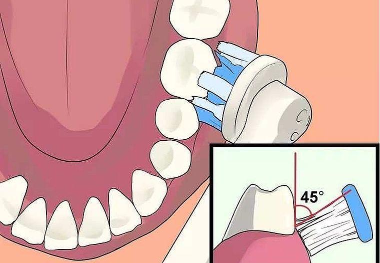 как чистить зубы электрощеткой