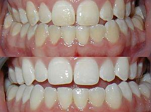 зубное отбеливание Opalescence