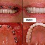 полная имплантация: до и после