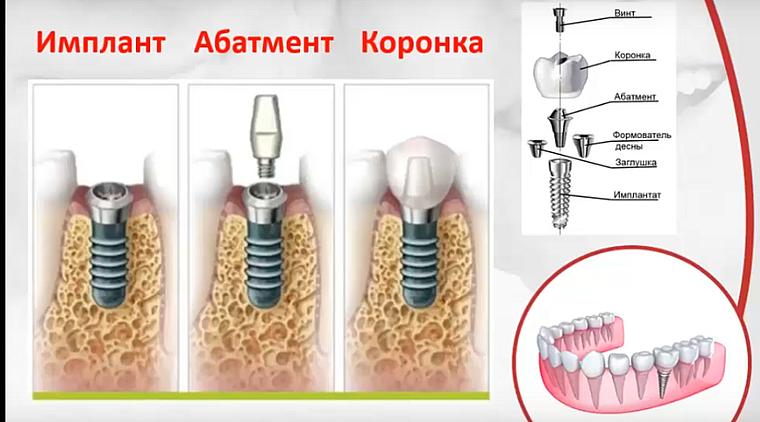 винтовой имплантат