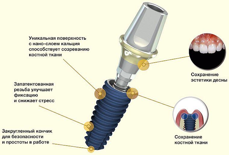 AnyOne импланты