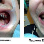 до и после полной имплантации