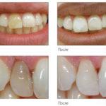 кислородное домашнее отбеливание зубов