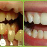 кислородное отбеливание зубов