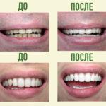 до и после кислородного отбеливания зубов