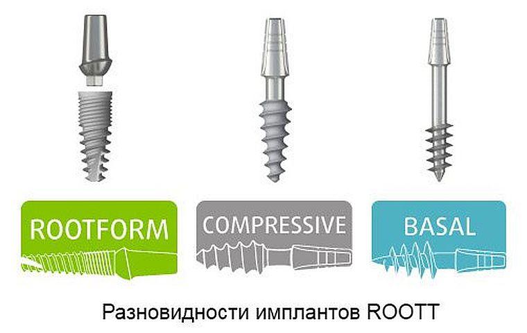 виды имплантов Roott