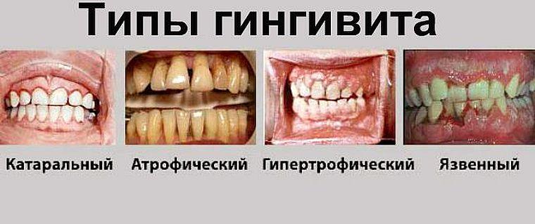 формы гингивита